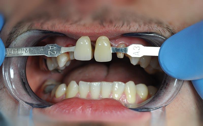 красивые зубы протезирование фото