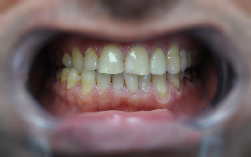 zoom 4 отбеливание зубов краснодар