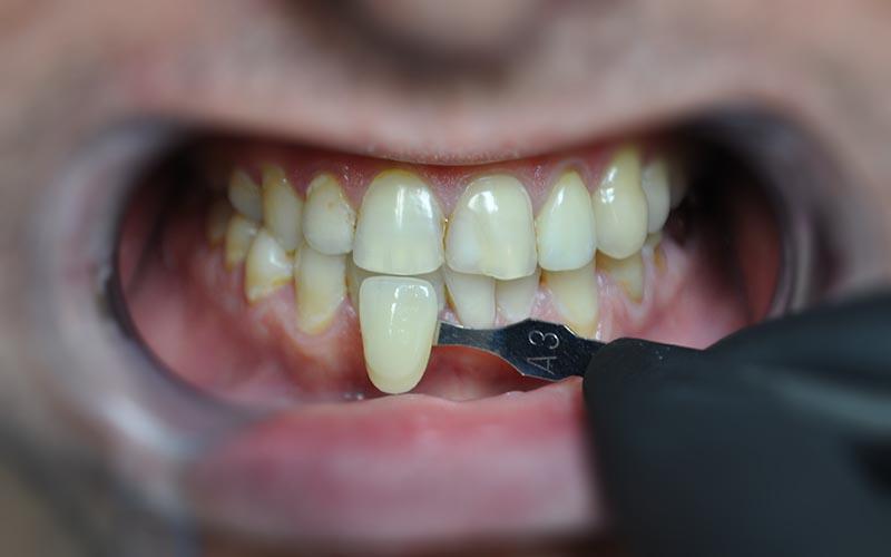 отбеливание зубов лампой отзывы